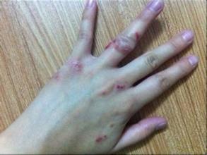 引发湿疹的三大病因是什么